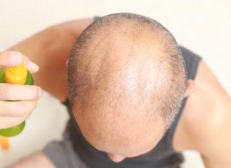 Ein Mann mit Haarausfall (Deeblue/Depositphotos)