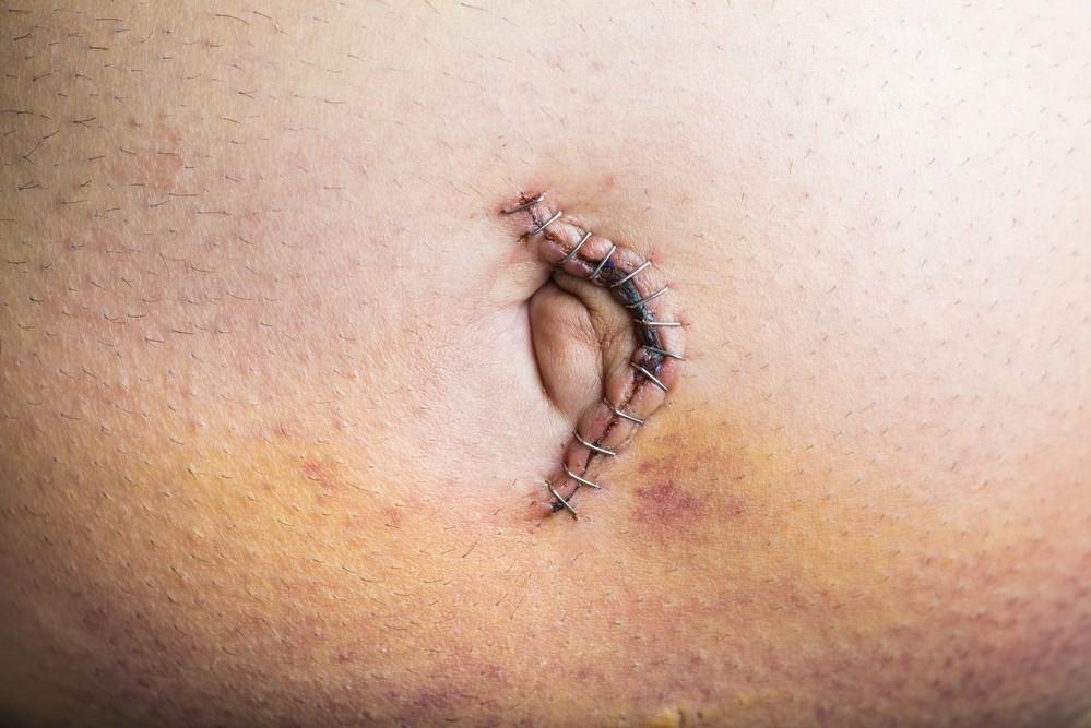 Eine Nabelhernie nach der Operation
