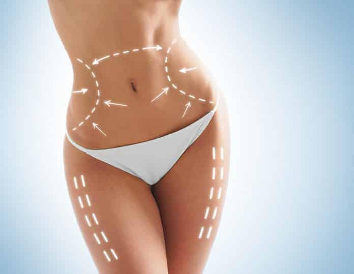 Weiblicher Körper mit aufgemalten Linien