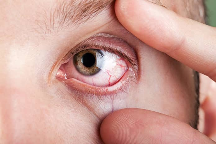 Ein trockenes und gerötetes Auge